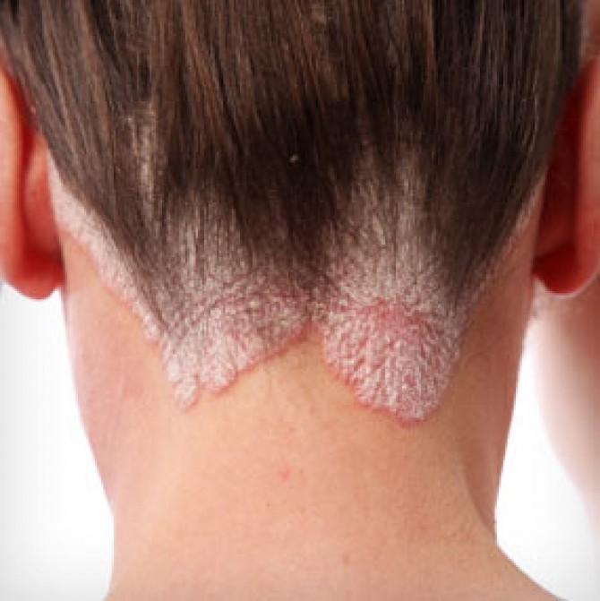 dermatita seboreica scalp poze