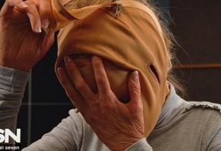 Dana, după doi ani de terapie înainte de a-și scoate masca!