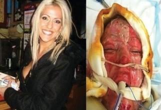 Dana Vulin înainte să fie atacată și după, la spital