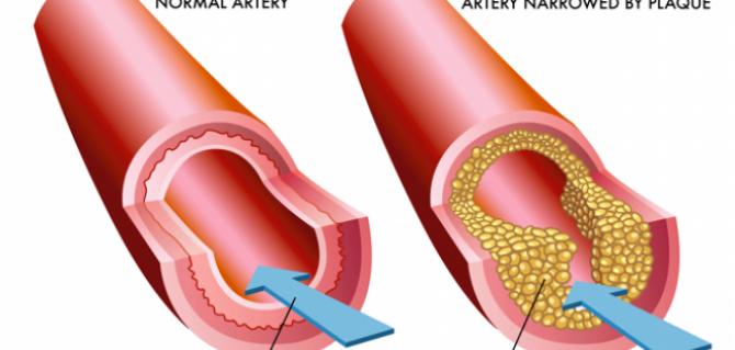 colesterolul rau marit