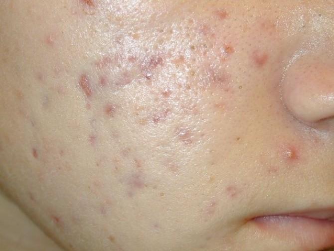 dieta pentru acnee vulgara