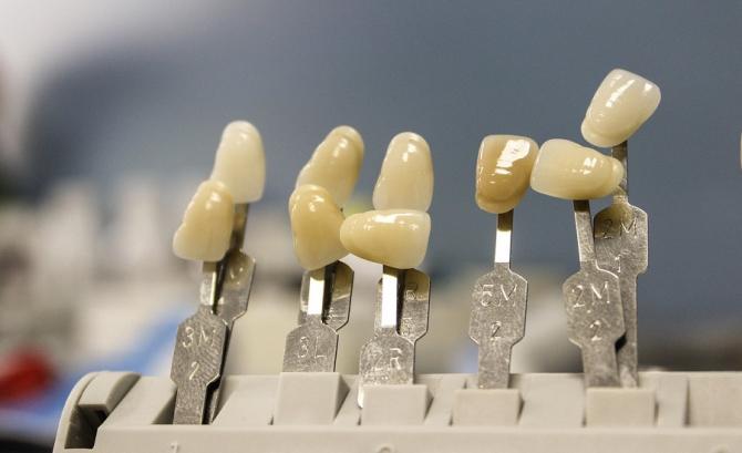 Soluții ieftine implant dentar. Dr. Alice Gavrilescu: Există soluții moderne