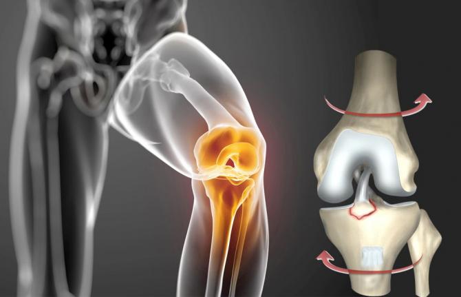 Sportivi sau nu, rupturi de ligamente putem face cu toții, mecanismul fiind același: de torsiune. Foto: Sanador