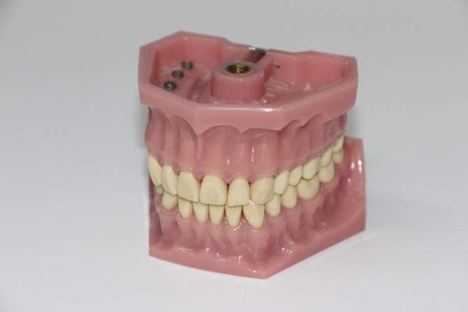 proteză dentară