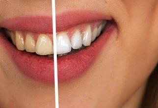 Rețetă naturală dinți albi