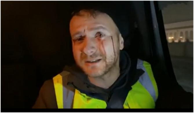 Daniel Bodnar, accident grav