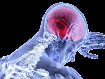 Studiu: La 6 luni după infectarea cu SARS-CoV-2, 1 din 3 oameni au probleme neurologice sau psihiatrice  /  Foto cu caracter ilustrativ: Pixabay