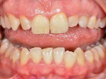 Avantaje implant dentar într-o zi