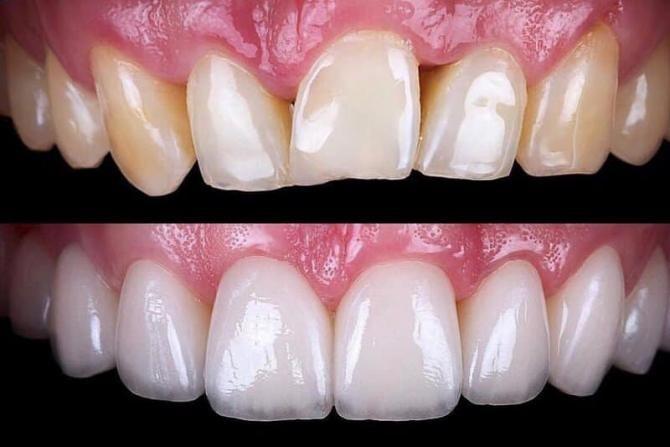albire dentară