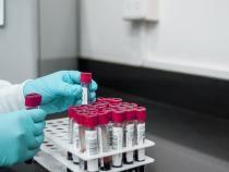Angajații nevaccinați din Grecia trebuie să se testeze săptămânal pe banii proprii   /   Foto cu caracter ilustrativ: Pixabay