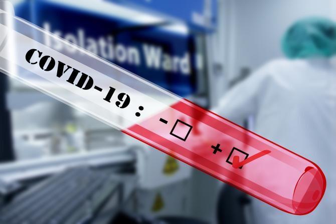 Jurma, despre eliminarea testelor: Mă face să trec de partea celor care nu se vaccinează și efectiv sunt alături de ei acum / Foto: Pixabay