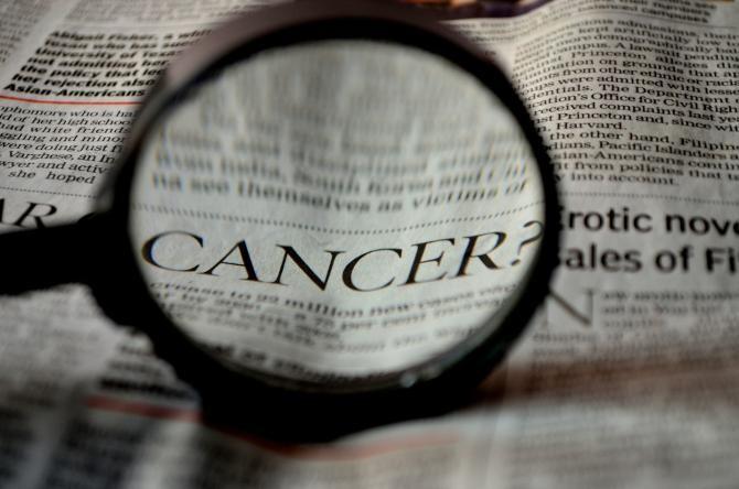 Cancer cerebral. Un nou tratament dă rezultate formidabile pentru tumorile din zona capului sau gâtului  /  Foto cu caracter ilustrativ: Pixabay